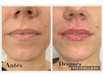 Aumento labios-687785