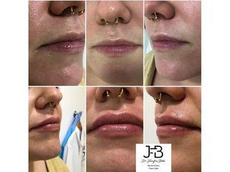 Aumento labios-687786