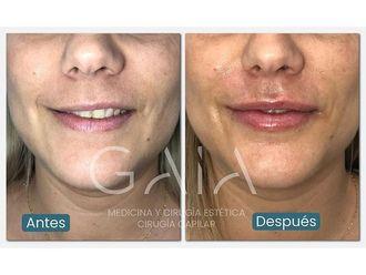 Aumento labios-687788