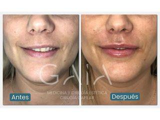 Aumento de labios - Clínica Gaia