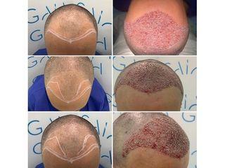 Implante capilar - Clínica Gaia