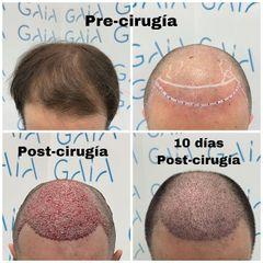 Trasplante capilar - Clínica Gaia