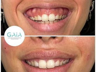 Aumento labios - 794582