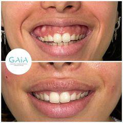 Sonrisa gingival ácido hialurónico Clínica Gaia