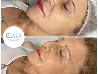 Rejuvenecimiento facial - 794583