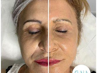 Rejuvenecimiento facial - 794584