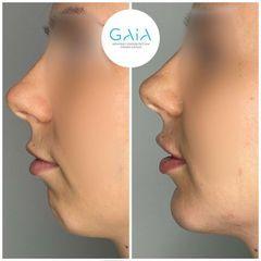 Aumento menton ácido hilurónico Clínica Gaia
