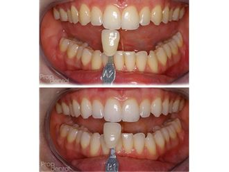 Blanqueamiento dental - 489198
