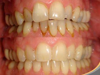 Ortodoncia invisible - 496784