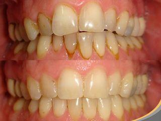 Ortodoncia Invisalign (ortodoncia invisible)