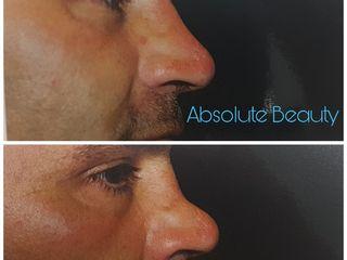 Antes y después Rinomodelación sin cirugía
