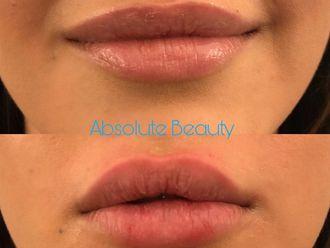 Aumento labios - 622902