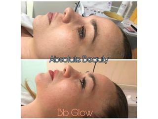 Antes y después BB glow