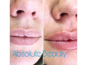 Aumento labios - 738069