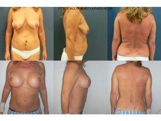 Abdominoplastia-649322
