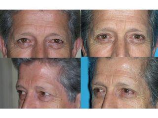 Antes y después Blefaroplastia - Dr. Joaquín Pérez Guisado Rosa