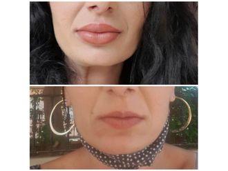 Aumento labios - 738096