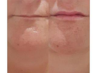 Antes y después Aumento de labios - Dr. Joaquín Pérez Guisado Rosa