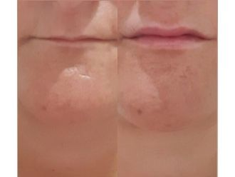 Aumento labios - 738097