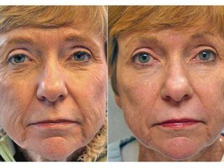 Antes y después Peeling químico