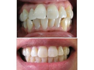 Ortodoncia-496447