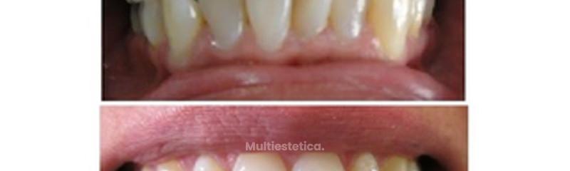 La ortodoncia que se adapta a tu vida diaria, sonríe sin complejos