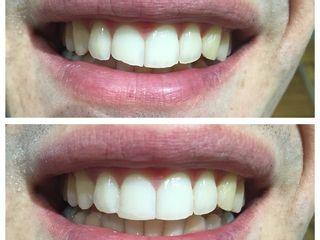 Antes y después carillas dentales