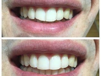 Carillas dentales-516521