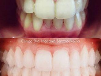 Ortodoncia-786021