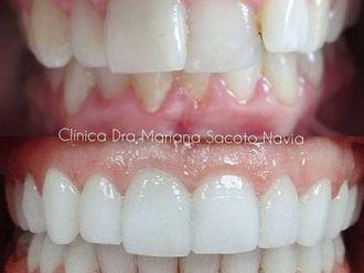 Ortodoncia-786023