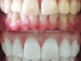 Blanqueamiento dental-786024