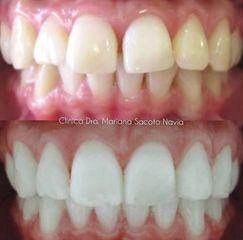 Blanqueamiento dental - Clínica Dra. Mariana Sacoto Navia