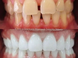 Ortodoncia-786025
