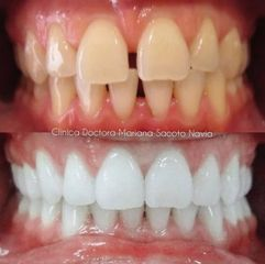 Ortodoncia - Clínica Dra. Mariana Sacoto Navia