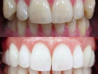 Blanqueamiento dental-786027