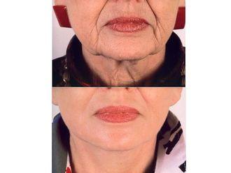 Cirugía estética-498335