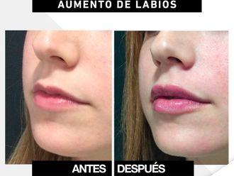 Aumento labios-649857