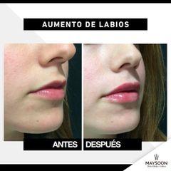 Antes y después Relleno Labios lateral