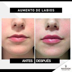 Antes y después Relleno Labios