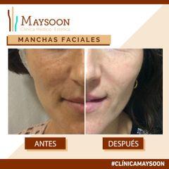 Antes y después Eliminación de Manchas faciales