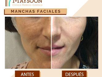 Tratamiento antimanchas - 649926