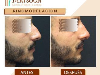 Rinomodelación-649928