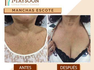 Tratamiento antimanchas - 649931
