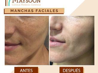 Tratamiento antimanchas - 649932