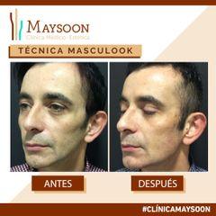 Antes y después Masculook relleno de ángulos mandibulares lateral