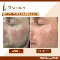 Antes y después Eliminación couperosis (capilares faciales)
