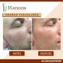 Eliminación couperosis (capilares faciales)