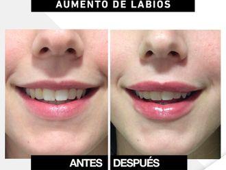 Aumento labios-649937