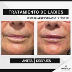 Aumento de labios - Clínica Maysoon