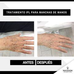 Tratamiento antimanchas - Clínica Maysoon